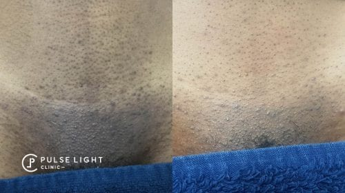A before and after of a dark skined lady's bikini area showing the results of big reduction in ingrown hairs and pigmentation after laser hair removal at Pulse Light Clinic
