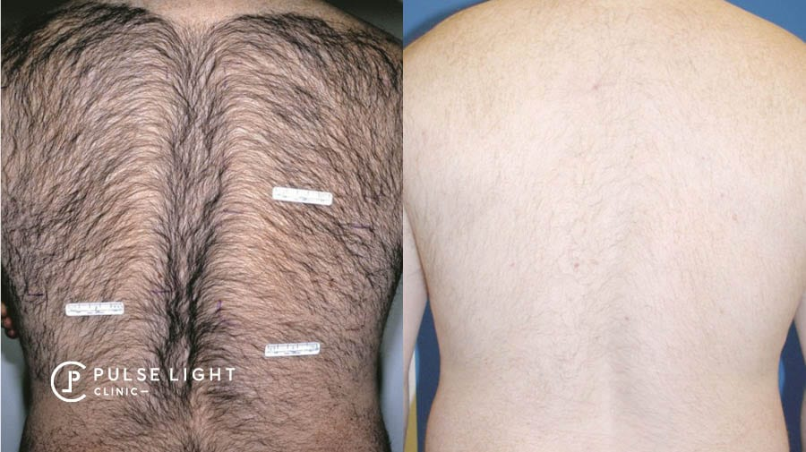 A man's back showing the results of laser hair removal