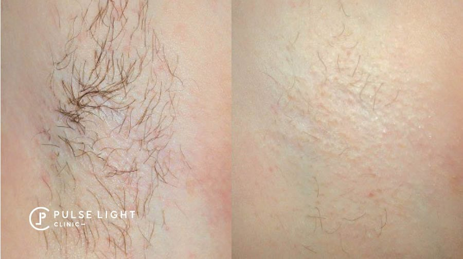 A lady's underarm before and after showing the results of laser hair removal