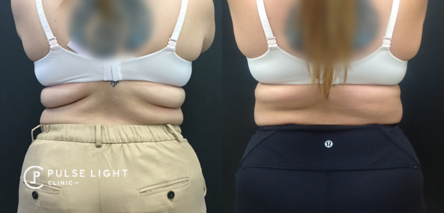 Back Fat CoolSculpting Results