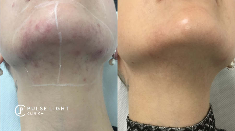PCOS Chin Ingrown Laser Hair Removal