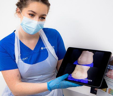 Coolsculpting treatment showing before and after