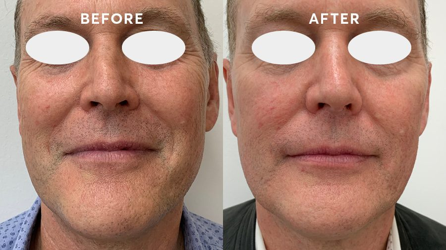Profound RF before and after full face