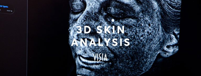 3D skin analysis visia london