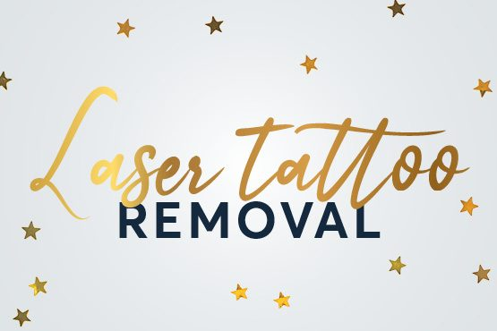 Laser Tattoo Christmas Offers